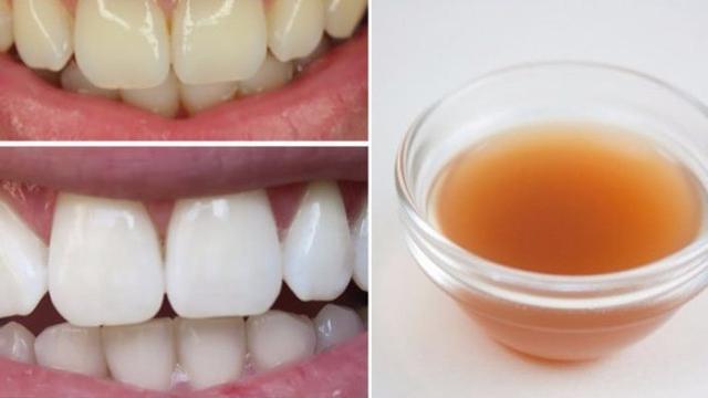 Rajin Kumur Pakai Cuka Sari Apel, Terbukti Bikin Gigi Putih Alami