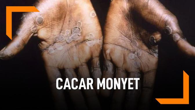 Beda Cacar Monyet dan Cacar Biasa