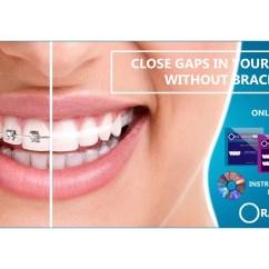 Rubber Bands Braces Diagram 1995 Chevy S10 Headlight Wiring Ora Band Teeth Gap Elastics Close Your