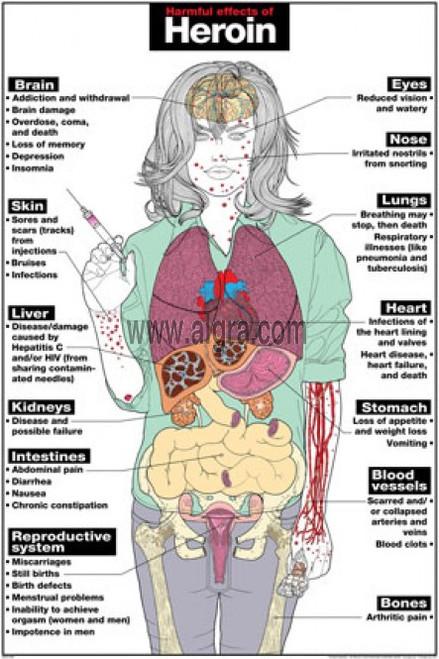 Lsd Negative Effects Side