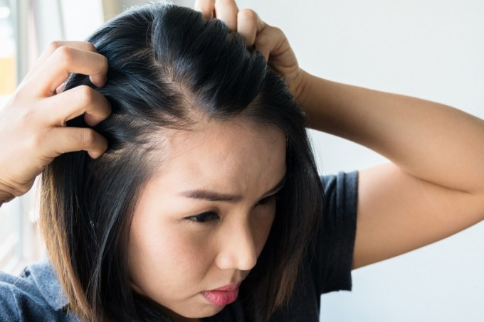hair loss: its causes, how to head it off and where to look