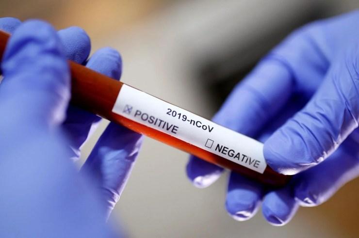Corona virüse karşı en riskli kan grubu belirlendi - 17
