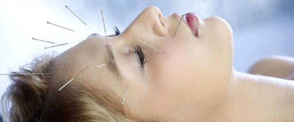kopf-akupunktur.jpg