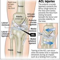 Front Leg Ligament Diagram 2000 Mitsubishi Montero Sport 3 0 Engine Acl Injuries Football And Me Field Gulls Qq1sgkneeacl Medium