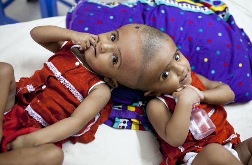 Während Tofa und Tahura erfolgreich getrennt wurden, warten die beiden Mädchen Rabia und Rukia (Foto) noch auf ihre Operation. Foto: ZUMA Wire