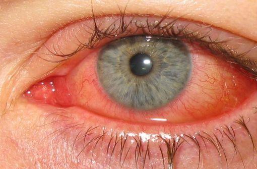Die Augengrippe (medizinisch: Adenovirus-Konjunktivitis) ist eine Viruserkrankung der Binde- und Hornhaut des Auges. Foto: Marco Mayer - Wikimedia Commons