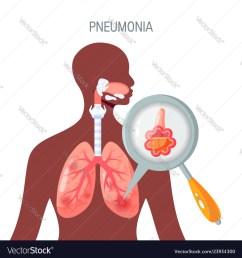 pneumonium diagram [ 1000 x 1080 Pixel ]