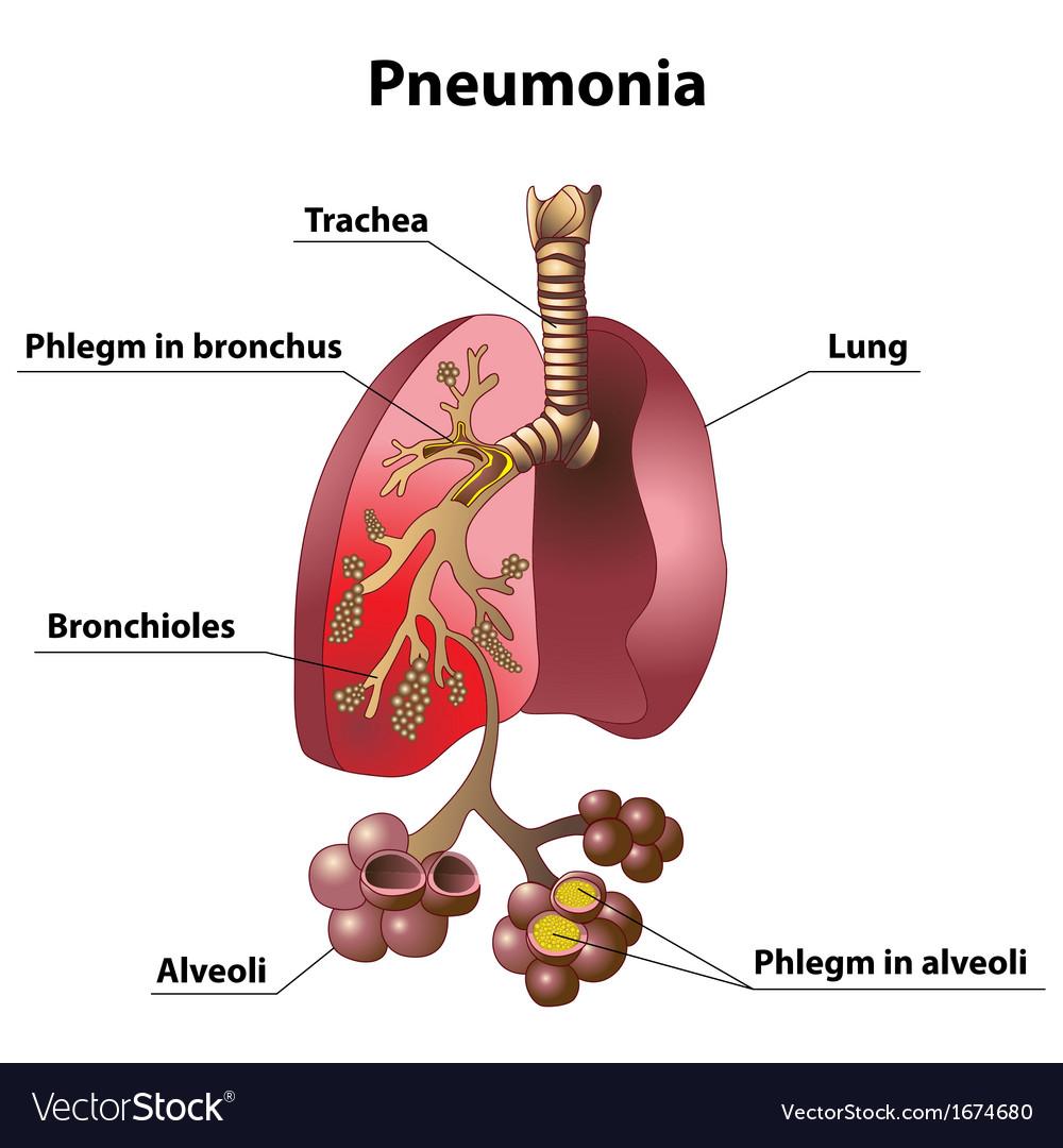 medium resolution of simple pneumonia diagram wiring diagram imp simple pneumonia diagram