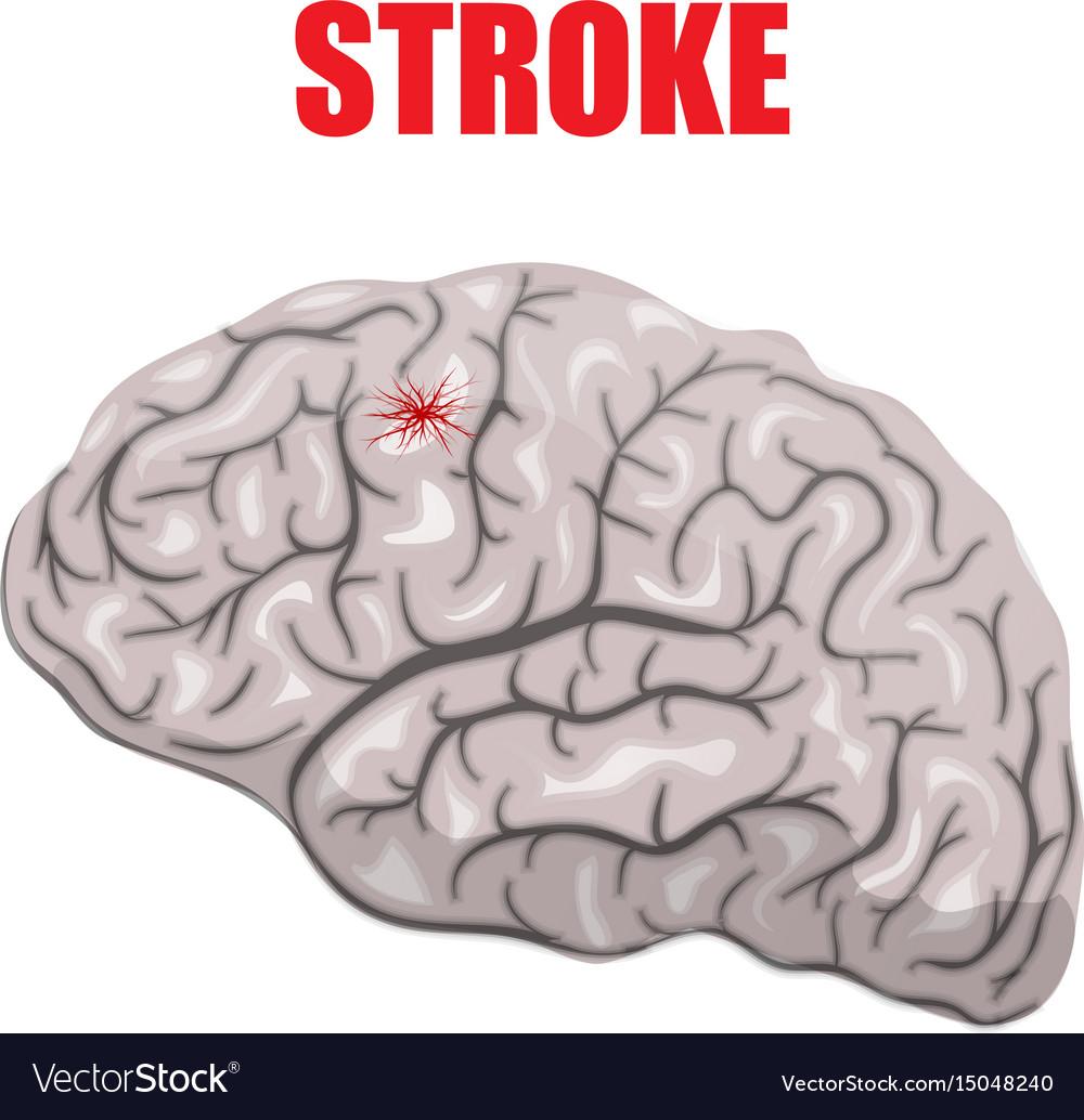 hight resolution of a hemorrhagic stroke vector image