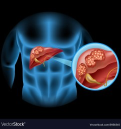 liver cancer diagram in detail vector image [ 1000 x 1026 Pixel ]
