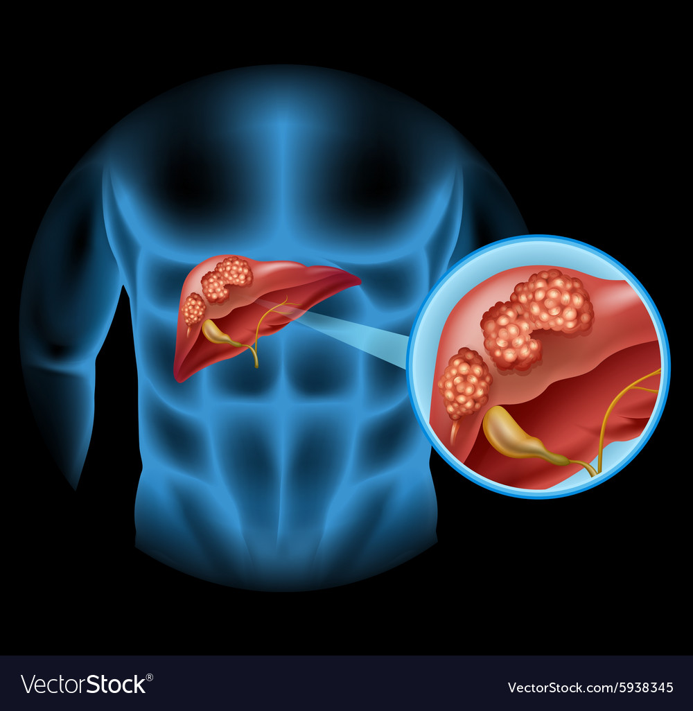 medium resolution of liver cancer diagram in detail vector image
