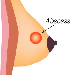 abscess world breast cancer day vector image [ 823 x 1080 Pixel ]