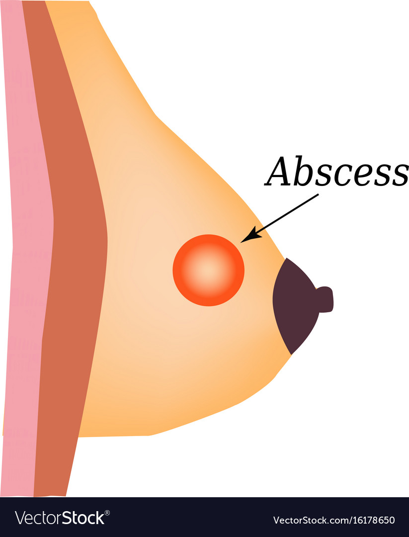 hight resolution of abscess world breast cancer day vector image