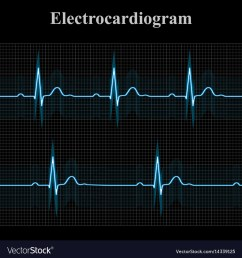 normal and bradycardial ekg charts vector image [ 1000 x 1080 Pixel ]
