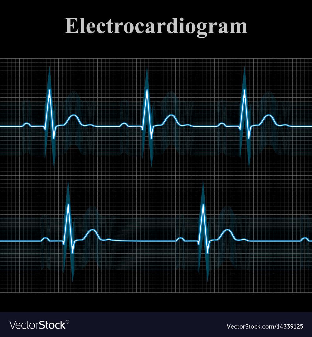 medium resolution of normal and bradycardial ekg charts vector image