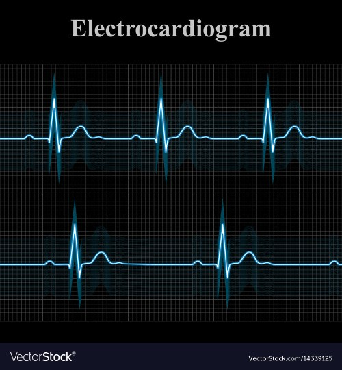 small resolution of normal and bradycardial ekg charts vector image