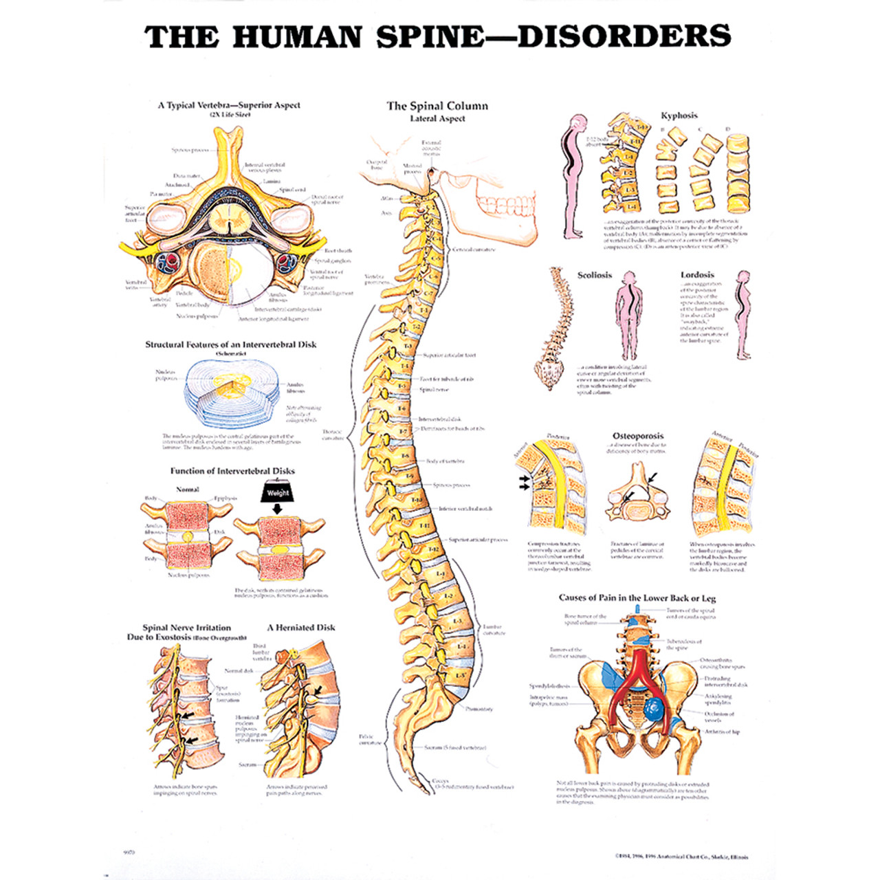 small resolution of 9970 spinedisorders 95582 1509303479 jpg c 2 imbypass on