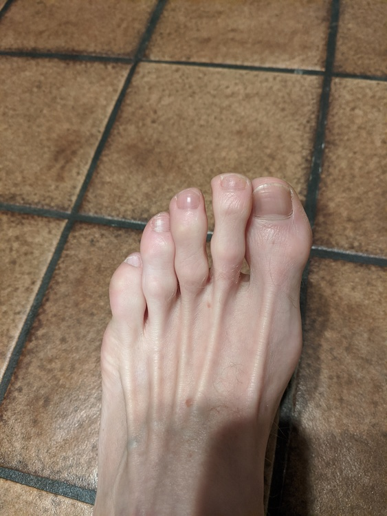 ᐈ Ugly toenail stock pictures, Royalty Free ugly toenails