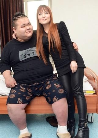 260公斤勵志哥為愛切胃 47公斤正妹女友不再抱樹幹 | ETtoday大陸 | ETtoday新聞雲