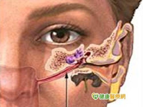 感冒左耳悶塞2週 竟罹1期鼻咽癌 | ETtoday健康雲 | ETtoday新聞雲