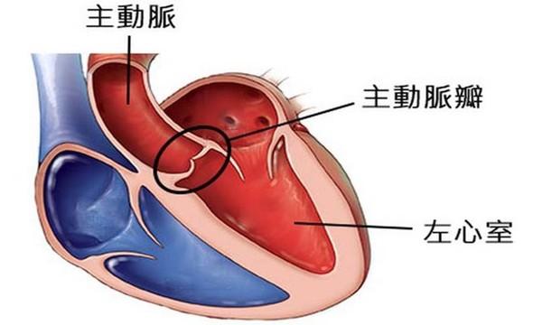 劉真裝葉克膜搶救 醫解析「主動脈瓣膜狹窄」危險性...手術分3種 | ETtoday健康雲 | ETtoday新聞雲