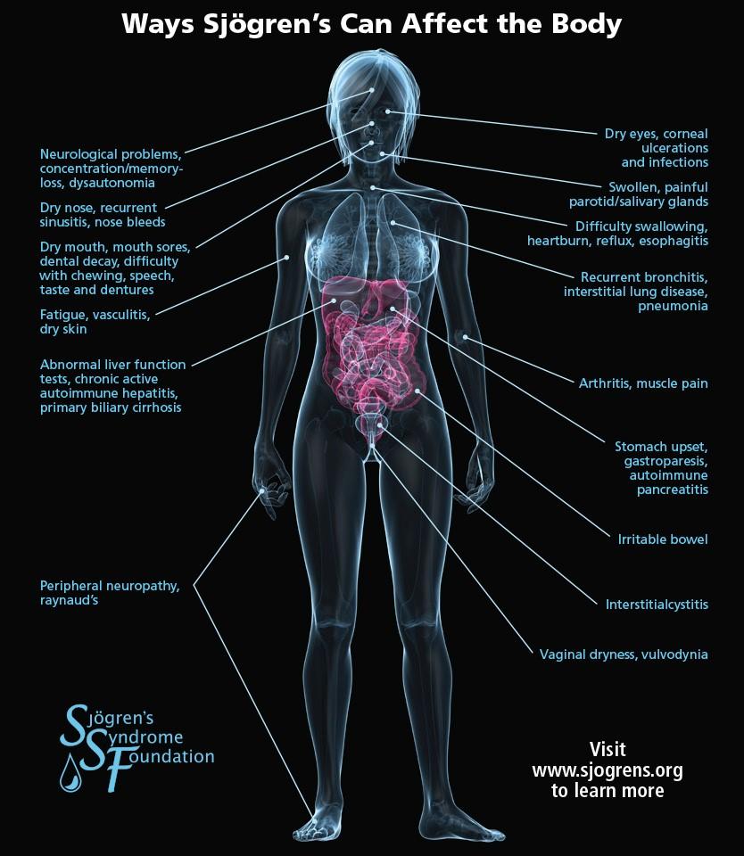 hight resolution of sjogren s body symptoms