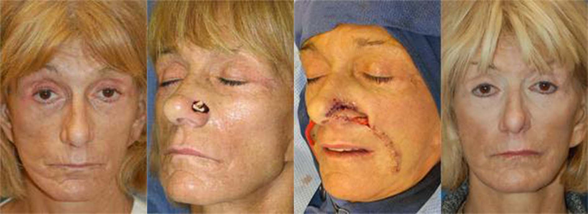 Mohs Surgery and Skin Cancer Photos | Melbourne. FL | Patient 49995