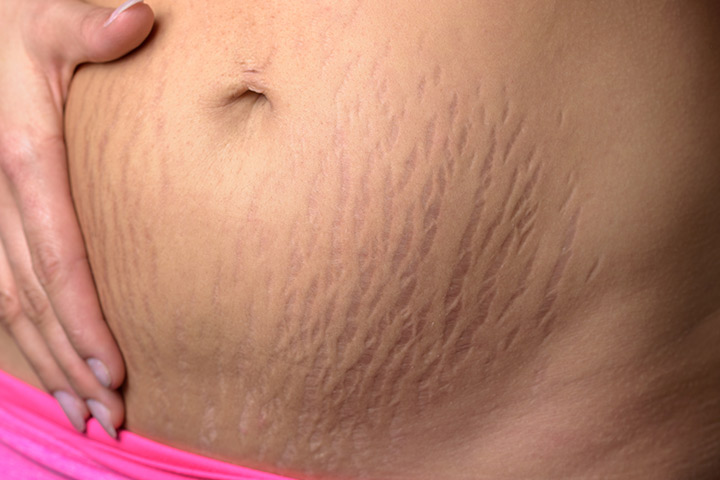 Image result for stretch marks pregnancy