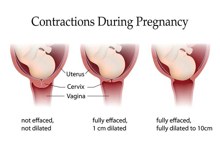 Resultado de imagem para contractions pregnancy