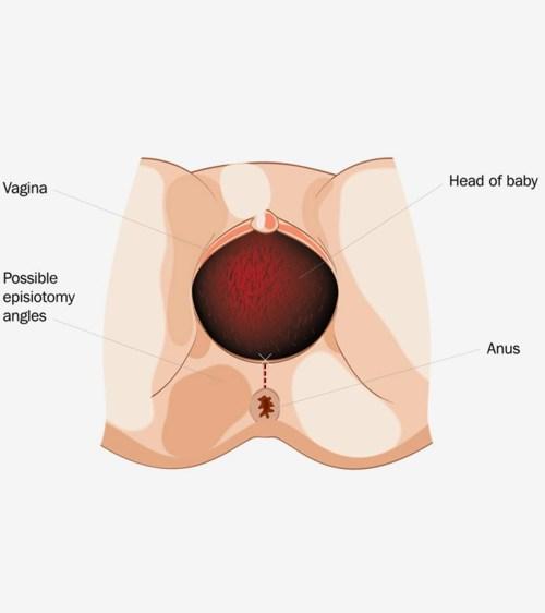 small resolution of perineum diagram