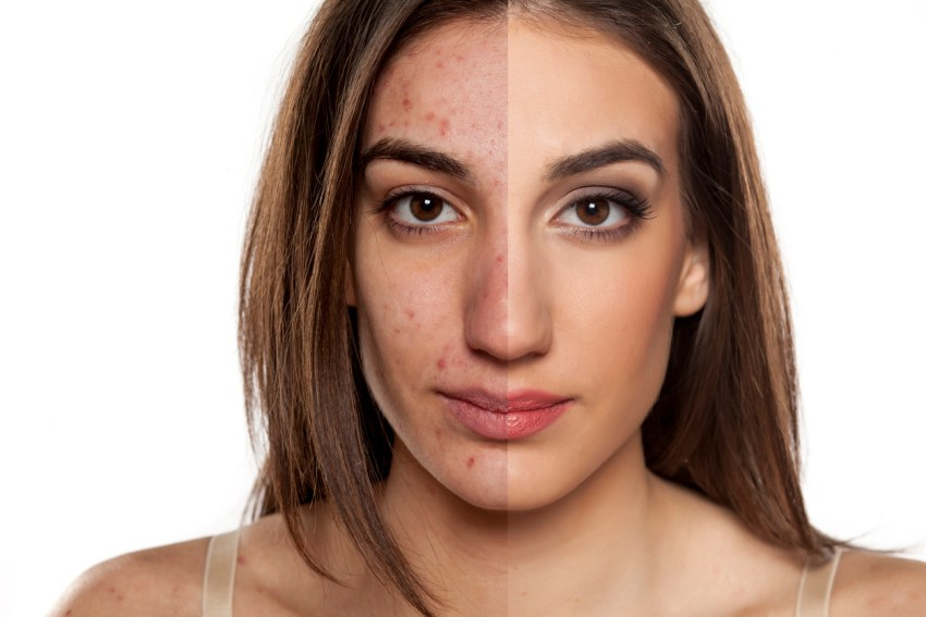 ¿Cuál es tu tipo de acné? Descúbrelo y elimínalo sin falla