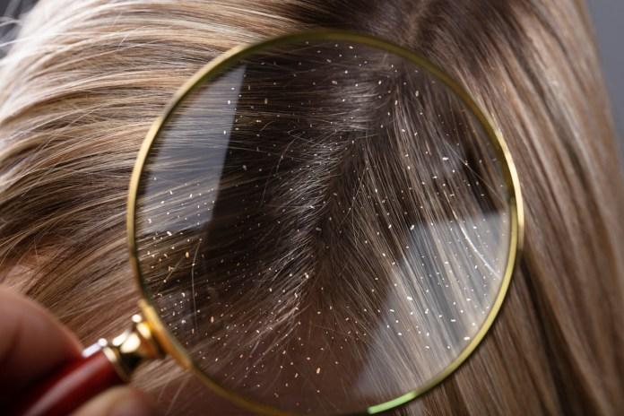 La presencia de piojos puede causar mucha comezón y al rascarnos causamos ciertas heridas en nuestro cuero cabelludo, por lo cual éste podría dolernos.