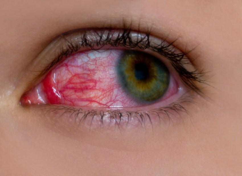 La sífilis ocular es una complicación que puede aparecer en la etapa temprana de esta ETS
