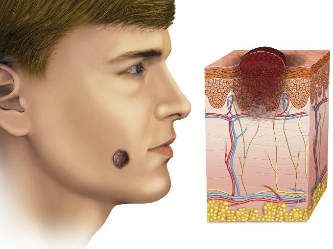 Cáncer de piel es más fatal en hombres   Salud180