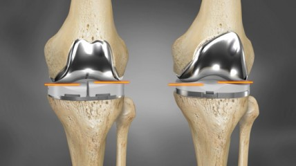 Image result for 3D Printing for Use in Total Knee Replacements
