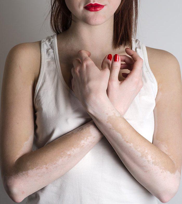 21 Natural Ways To Get Rid Of White Spots On Skin (Vitiligo)
