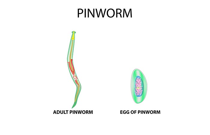 How To Get Rid Of Pinworms: Causes, 17 Home Remedies