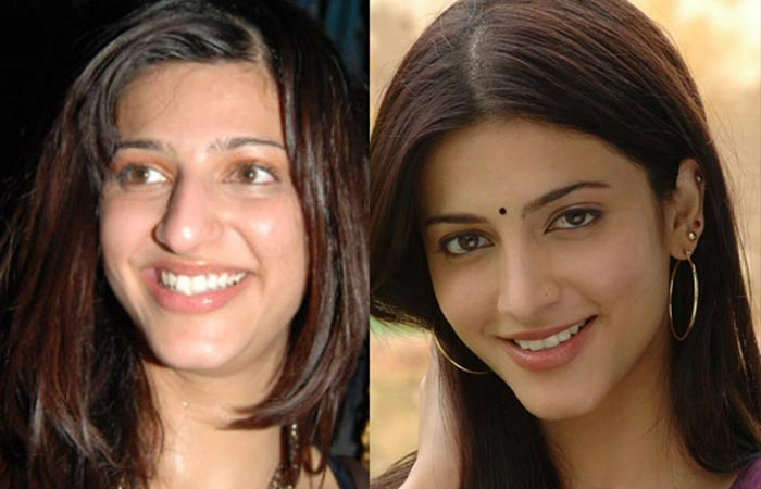 Shruti Hassan Before And After Plastic Surgery
