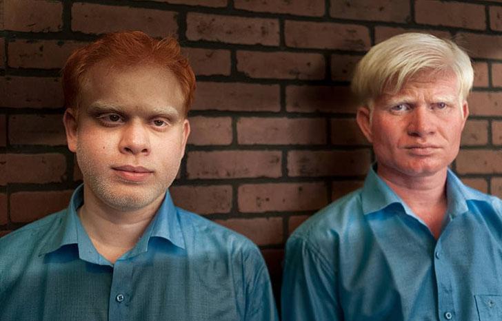 """silviaalessi skinproject albinismo003 - 14 fotografías de """"Skin Project"""": Una serie de retratos de albinos y mujeres quemadas con ácido"""