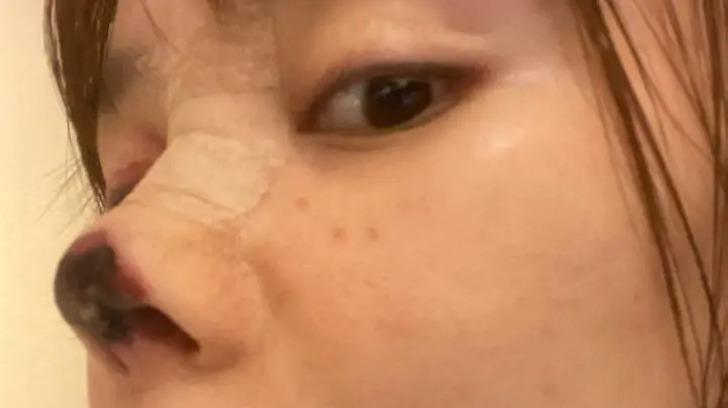actriz china nariz cirugia0003 - Actriz sufrió una infección en su nariz luego de una cirugía que salió mal. La punta se tornó negra