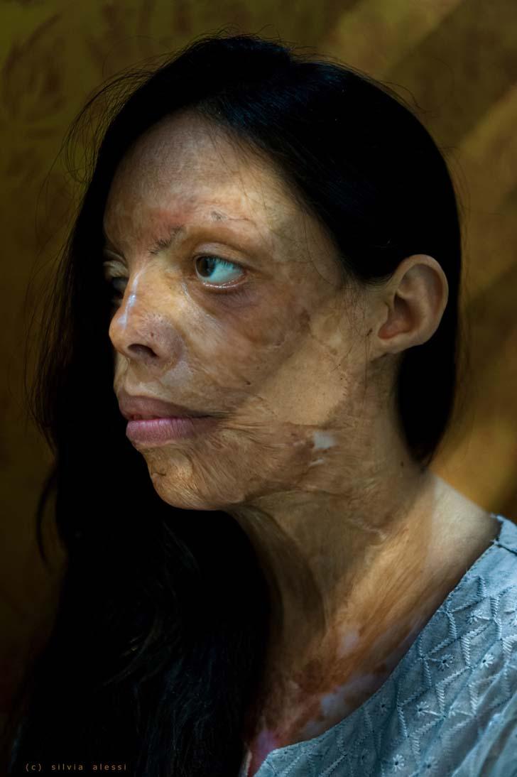 """silviaalessi skinproject 010 - 14 fotografías de """"Skin Project"""": Una serie de retratos de albinos y mujeres quemadas con ácido"""