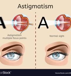 astigmatism medical diagram or scheme vector image [ 1000 x 869 Pixel ]