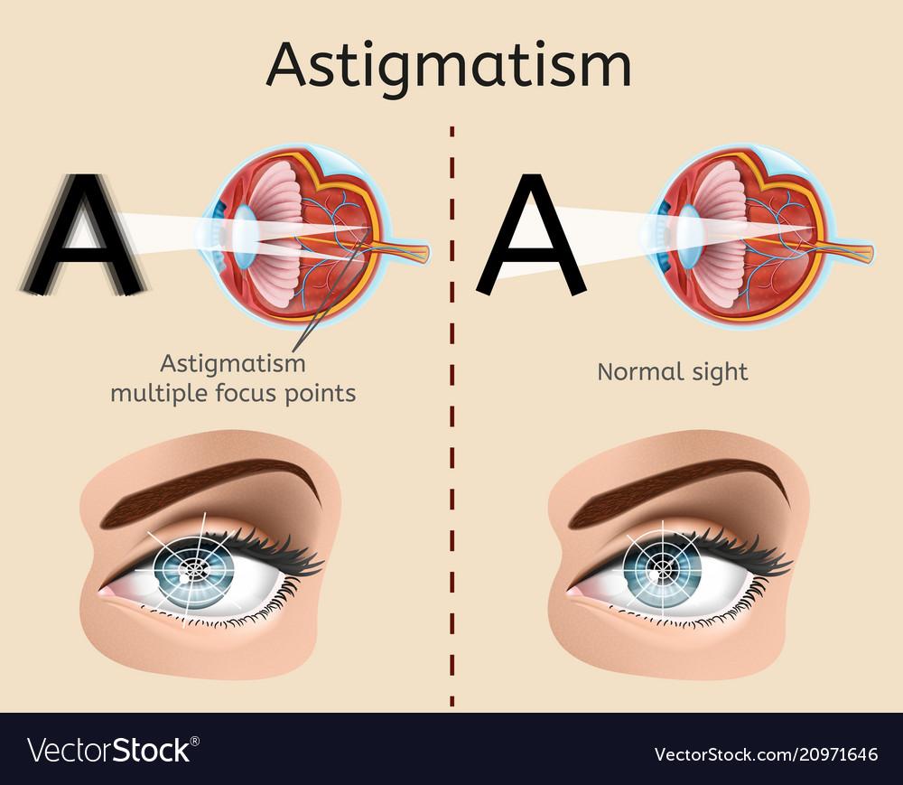 hight resolution of astigmatism medical diagram or scheme vector image
