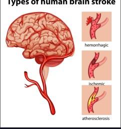 stroke brain diagram [ 880 x 1080 Pixel ]