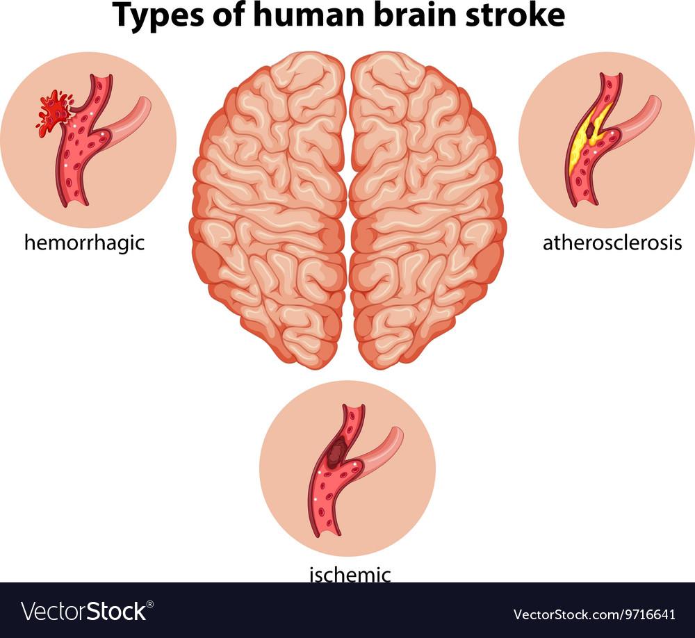 medium resolution of types of human brain stroke vector image