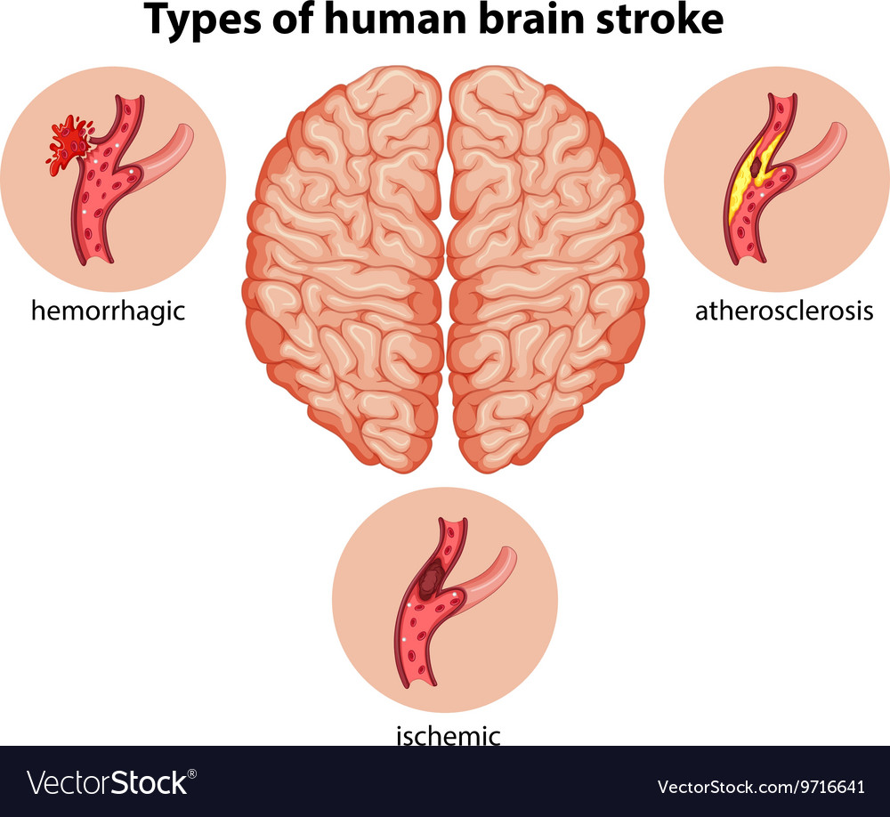 hight resolution of types of human brain stroke vector image