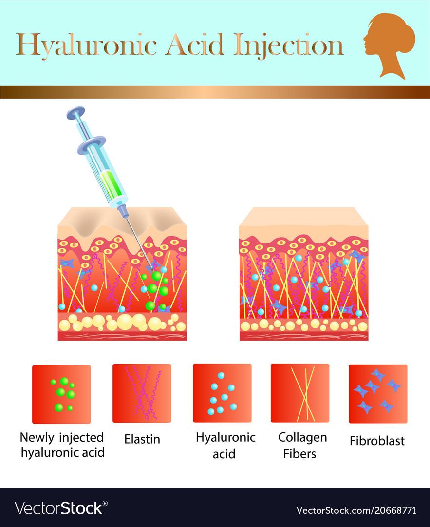 hight resolution of hyaluronic acid diagram
