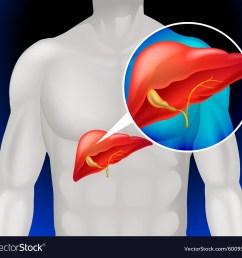 liver cancer diagram in detail vector image [ 1000 x 950 Pixel ]