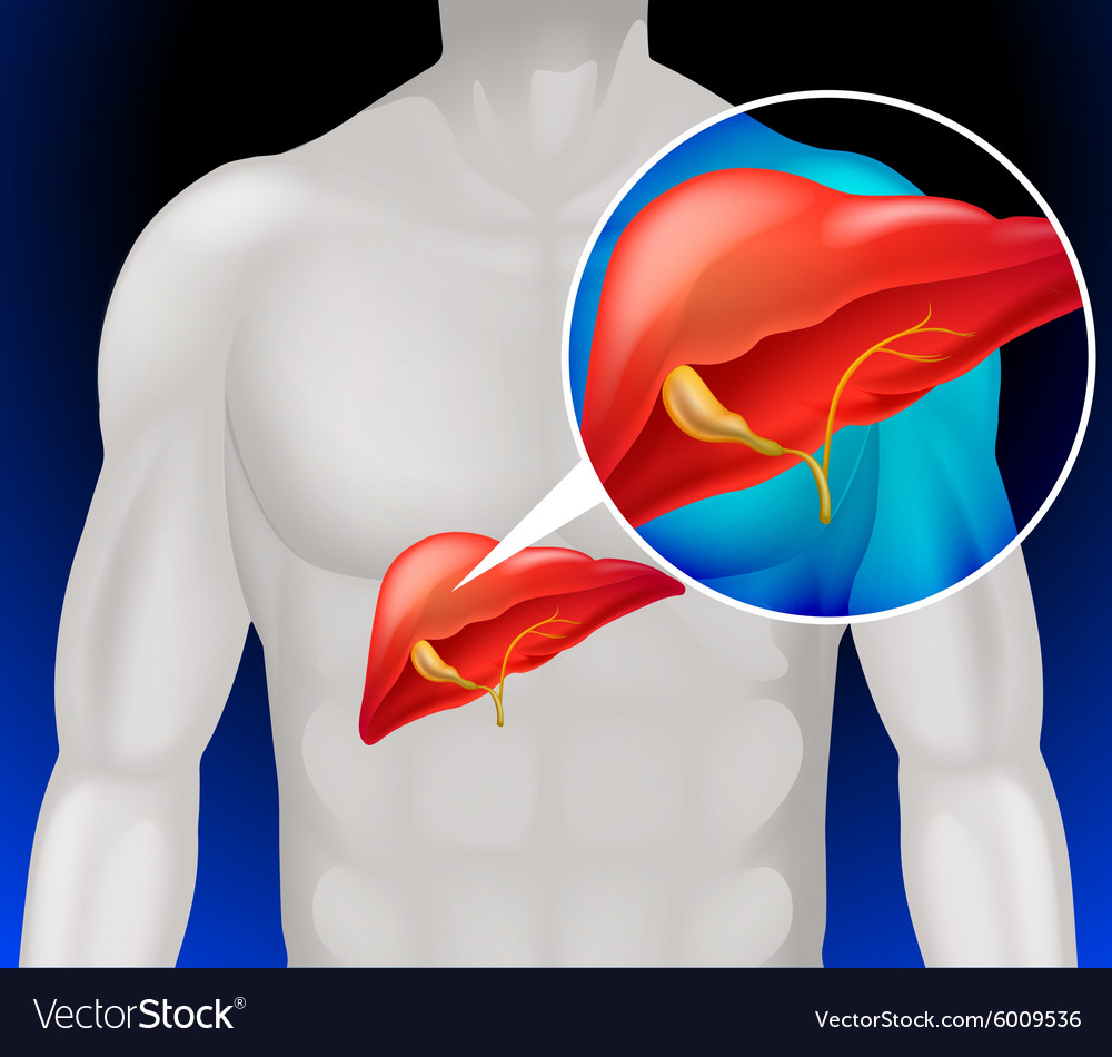 hight resolution of liver cancer diagram in detail vector image