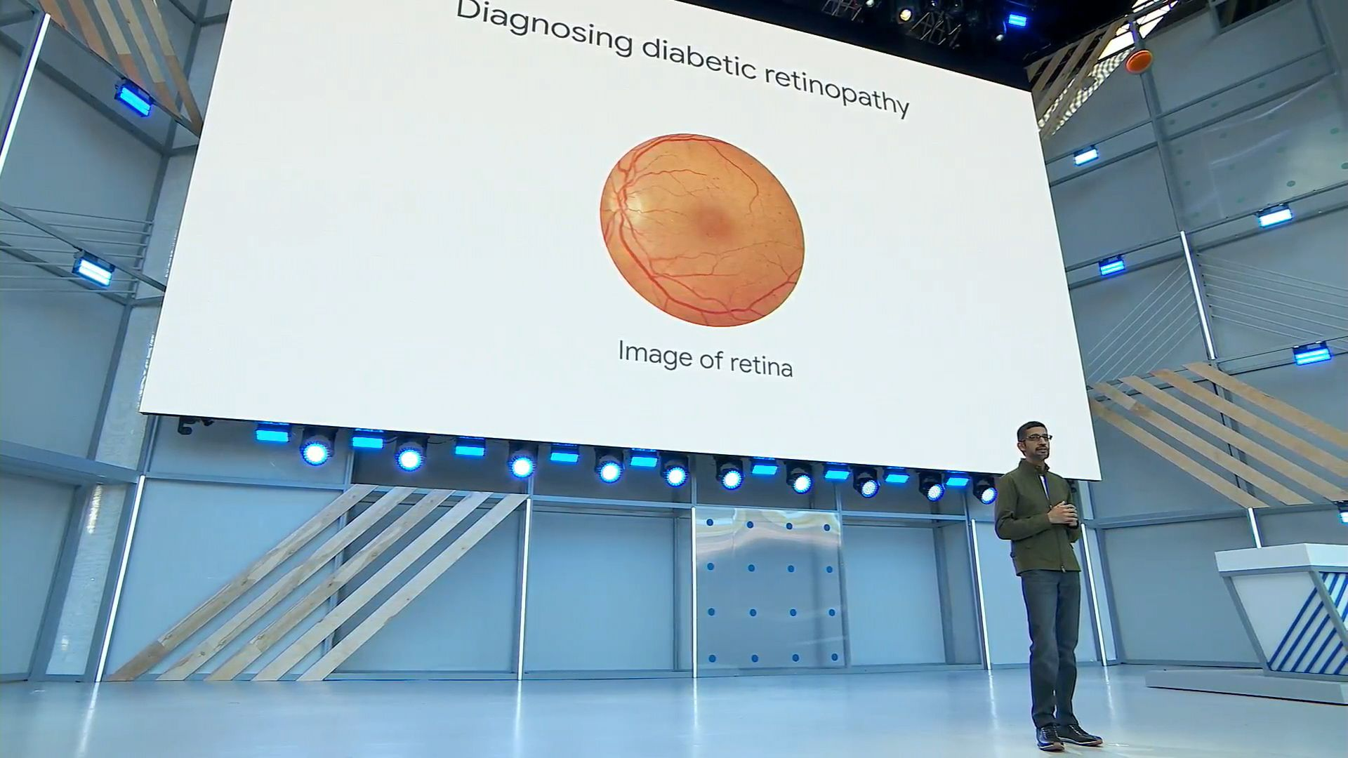 Google's New Ai Algorithm Predicts Heart Disease By Looking At Your Eyes -  The Verge